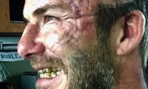 David-Beckham-est-balafre